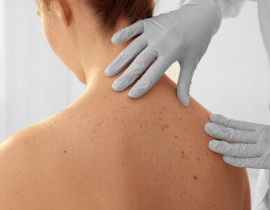 Nie tylko czerniak jest zagrożeniem dla skóry. Masz na ciele dziwne...